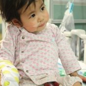 Heart transplant operation of one-year-old Onaga is successful